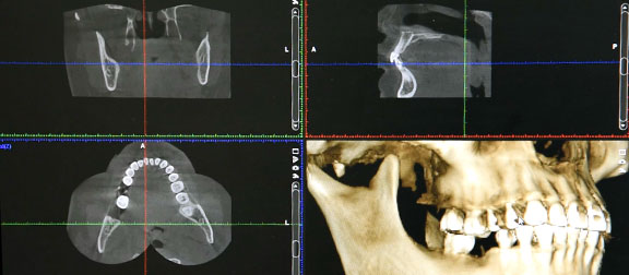 เทคโนโลยี CT Scan