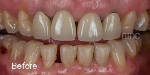 Full Mouth Rehabilitations