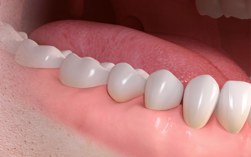 full teeth after dental bridge