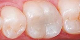 อุดฟันสีเหมือนฟัน