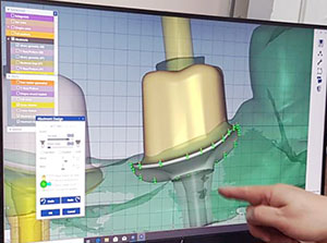 digital implant