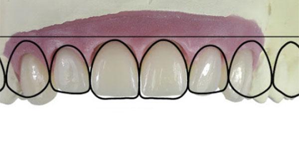 composite hybrid veneer