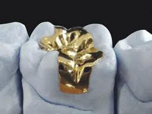 Gold inlays