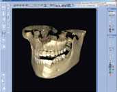 3D CT Scan romexis