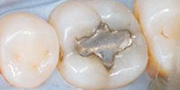 tooth fillings material