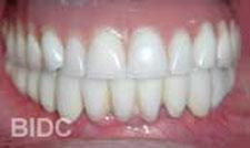 zygoma teeth
