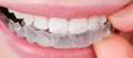 Essix clear retainers