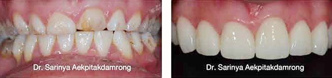 crowns dental case