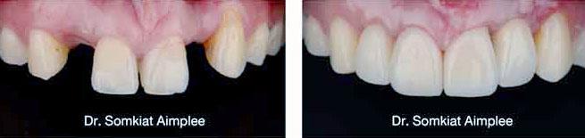 implant dental case