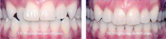 braces dental cases