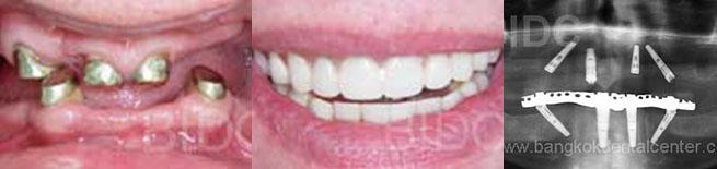 all-on-4 dental cases