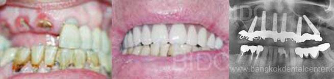 all-on-6 dental cases