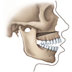 jaw surgery open bite