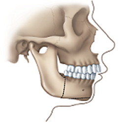 jaw surgery receding jaw