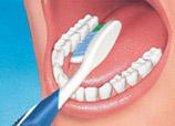 dental clinic proper tooth brushing