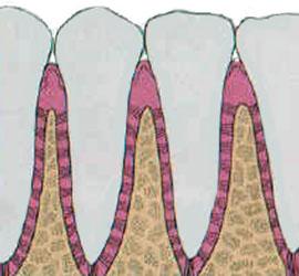 gums treatments