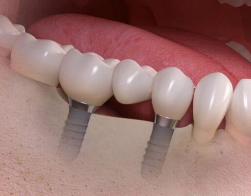 implant bridge