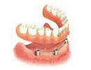implant dentures fees