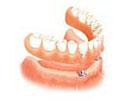 dentures dental implant fees