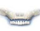 zygoma dental implant fees
